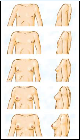 Door gebrekkige vrouwelijke hormonen groeien de borsten tijdens de pubertijd minder goed