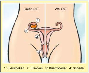 Bij Turner vrouwen zijn de eierstokken verschrompelt