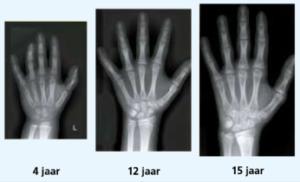 Röntgenfoto's van een linker meisjeshand op 3 verschillende leeftijden